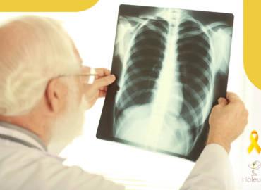 Polifenoles del AOVE contra la metástasis ósea